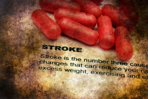 Everything You Need to Know About Stroke